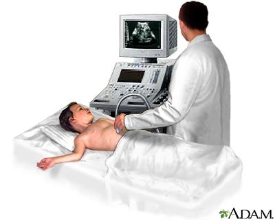 ultrazvok-trebuha-uz-trebuha