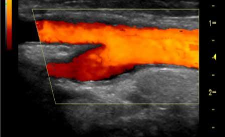 ultrazvok vratnega ožilja